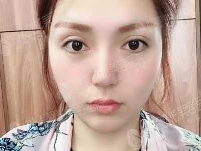 瘦脸吸脂 昆明博美面部抽脂瘦脸前后对比图